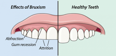Effects of Bruxism | Mackenzie Dental Centre