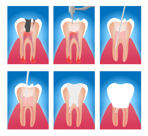 root canal bad teeth healthy teeth dentist vaughan