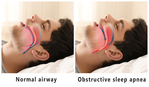 sleep apnea man airways sleeping woodbridge