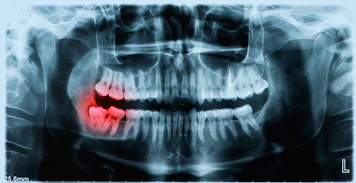 teeth x-ray mouth tooth ache inflammation dentist vaughan