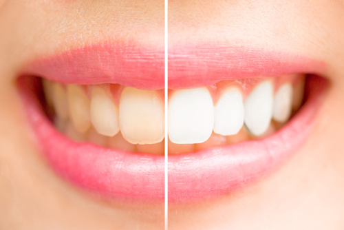 professional teeth whitening before after