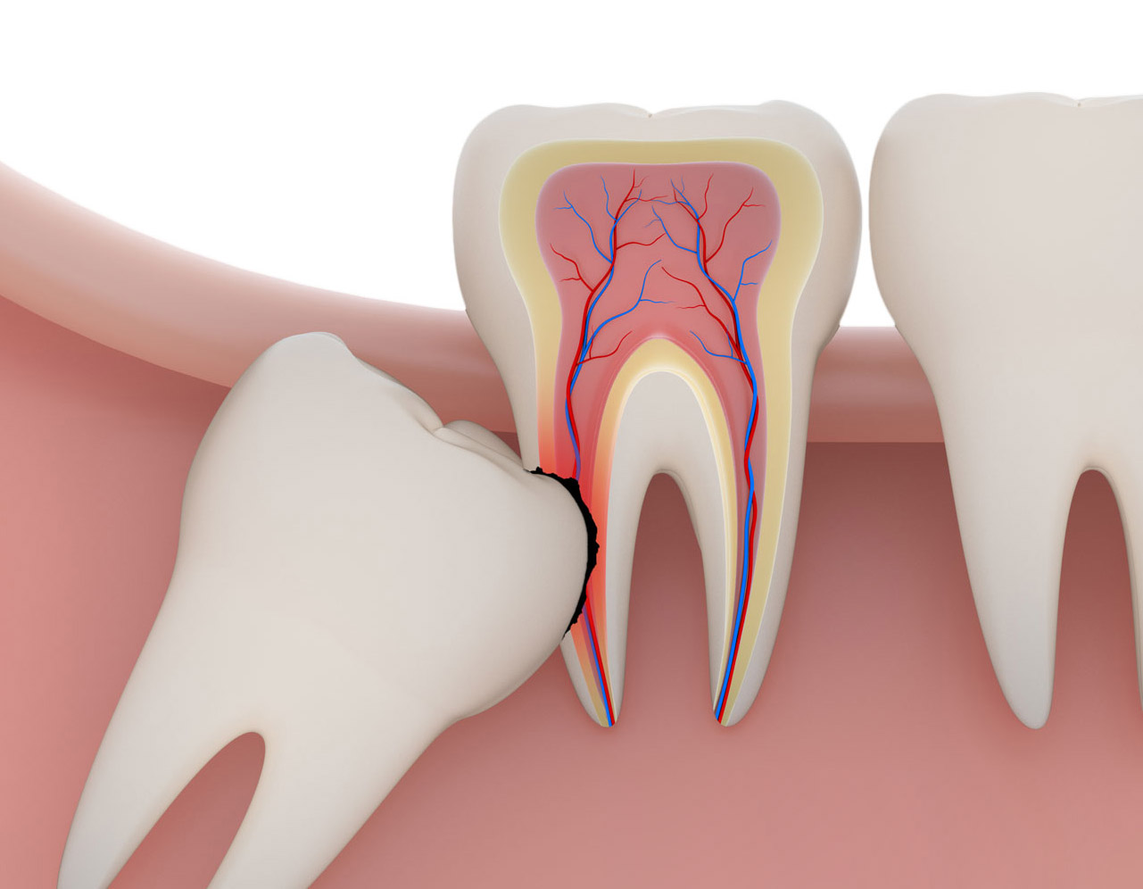 Wisdom Teeth Removal What You Need To Know Before You Go